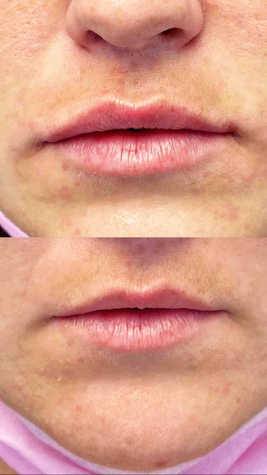 עיצוב שפתיים - לפני אחרי