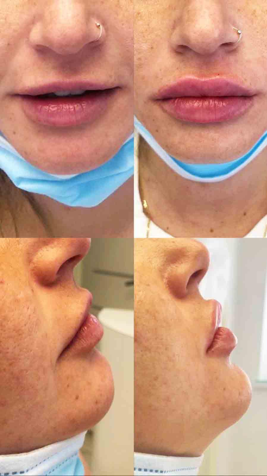 עיבוי שפתיים - לפני אחרי